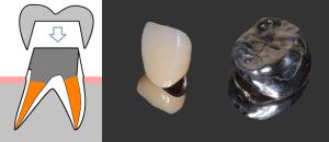 京都市中京区の歯科 あきデンタルクリニック 補綴