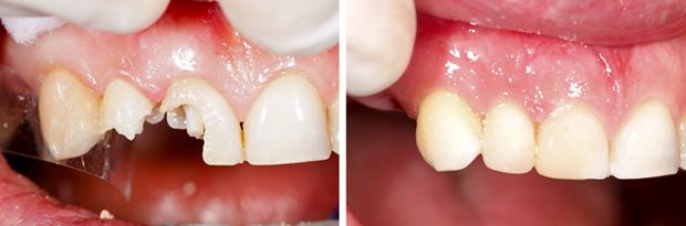 前歯が欠けたときは記事イラスト