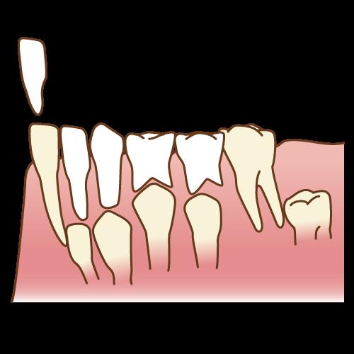 京都市中京区の歯科・歯医者あきデンタルクリニックの小児歯科イラスト